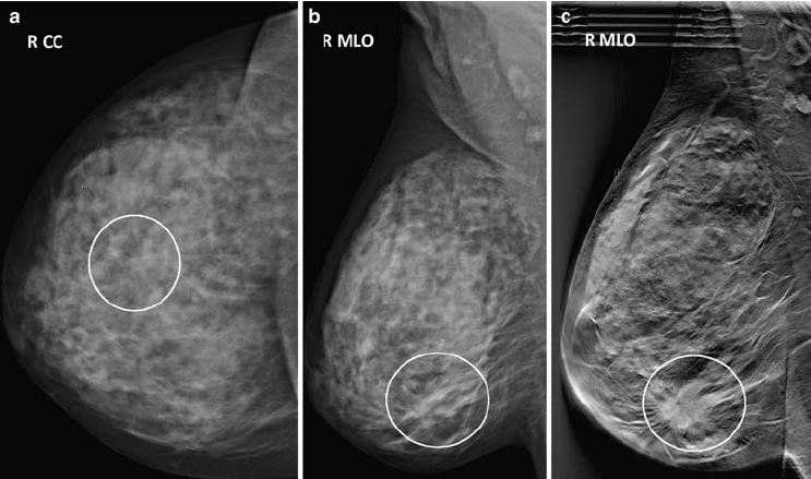 Fig-1-Patient-with-a-28-cm-grade-3-invasive-ductal-carcinoma-in-the-right-breast