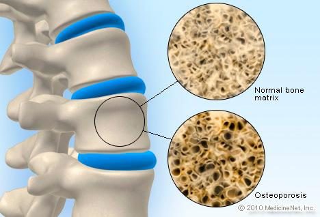 detail_osteoporosis